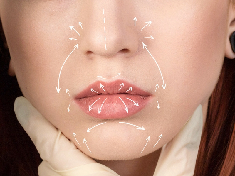 visage repulper médecine esthétique - botox injection