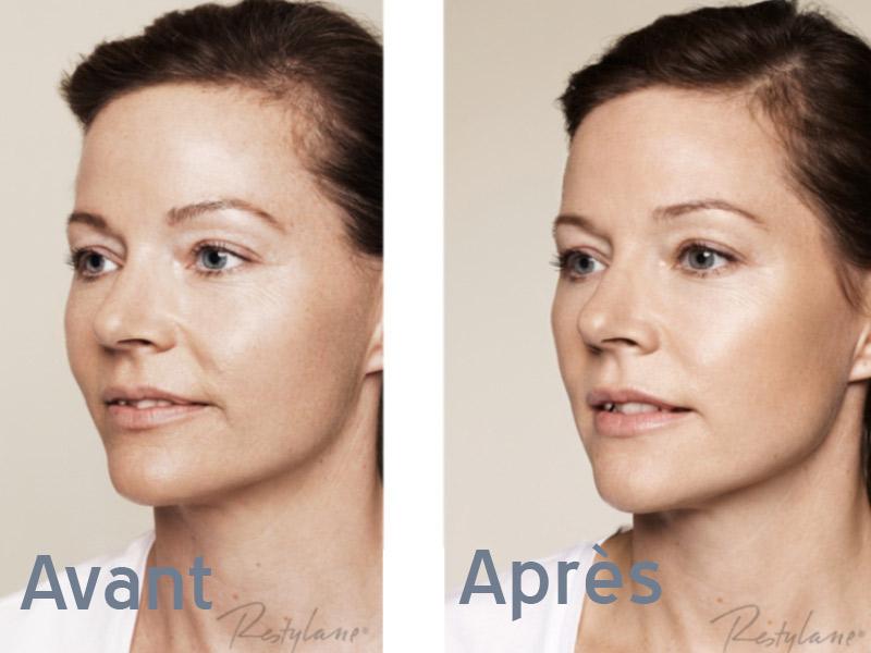 visage médecine esthétique - medecine esthetique visage
